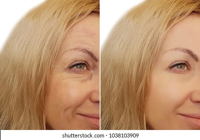 woman face wrinkles   before and after cosmetic procedures