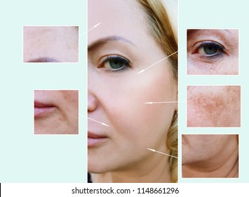 woman face wrinkles before and after procedures