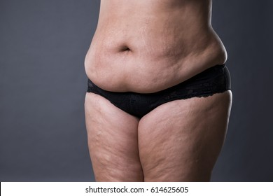 Woman with fat abdomen, overweight female stomach, stretch marks on belly closeup, gray studio background