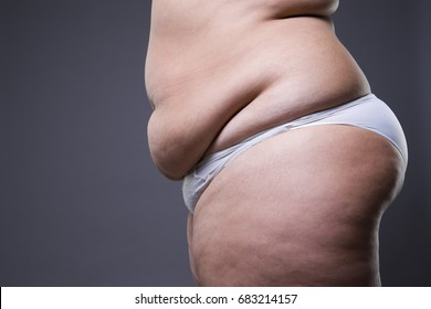 Woman with fat abdomen, overweight female stomach on gray studio background