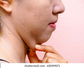 Woman with fat neck(side view), chin fat, fat woman, Beauty concept
