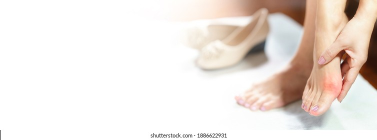 Woman feet problem. Banner of beautiful working woman's hand massaging her bunion toes in bare feet to relieve pain due to wearing pointy and narrow shoes. Medical condition - bunions (Hallux valgus).