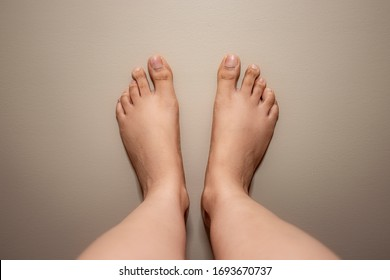 Woman feet with uneven toe. Both feet on a even colored background.Toes has small nails. Dark knuckles on the toe. Uneven toe medical condition.
