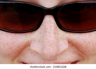 Woman with Freckles and Sunglasses Sweating in the Summer Sun