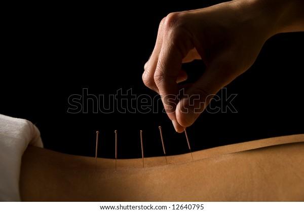 Frauen, die eine Akupunkturbehandlung in einem Spa erhalten