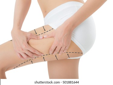 woman grabbing skin on her thigh with the drawing black arrows, Lose weight and liposuction cellulite removal concept, Isolated on white background.
