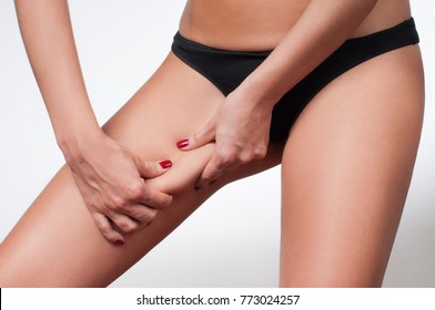 Woman grabbing skin on her leg. Cellulite fat removal skin. Lose weight and liposuction cellulite removal concept