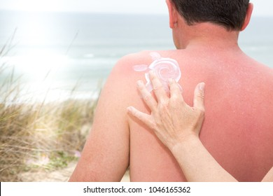 woman hand applying sunscreen on the back of a man who has a sunburn