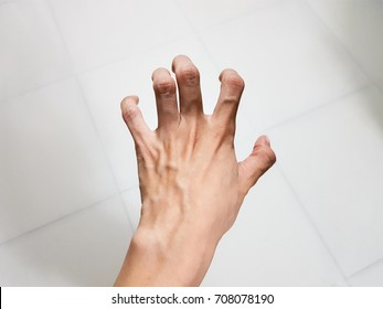 Woman hand Spasticity and Hypermobile fingers