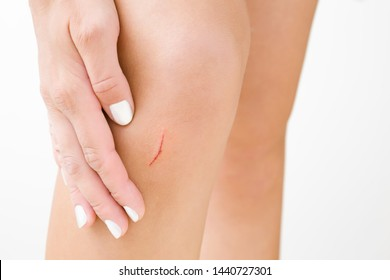 Woman hands touching her leg after small scratch on skin. First aid. Self help. Medical concept. Closeup. Front view.