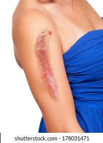 Woman has a big scar on her arm