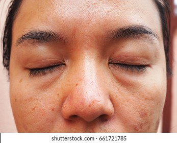 Woman has eye-bags issue, face problem, skin problem, beauty and cosmetics concept