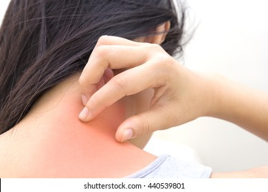 Woman has skin rash itch on neck and scratch itching by hand