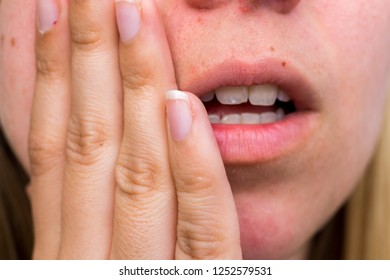 Woman has a toothache