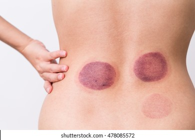 Woman having chinese cupping therapy