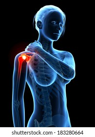 woman having pain in the shoulder