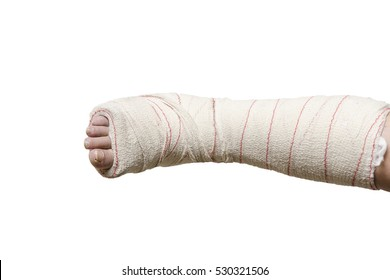 Woman with her broken leg. Arm in a cast, face not visible over white.