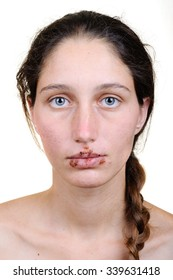 Woman with herpes virus/brunette woman suffering a manifestation of the herpes virus on the lips