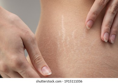 Woman hips with visible stretch marks. Young woman showing Stretch mark scars on her body.
