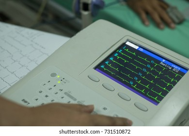 Woman holding electrocardiogram in the hospital, analyzing ECG electrocardiogram of patient in hospital.