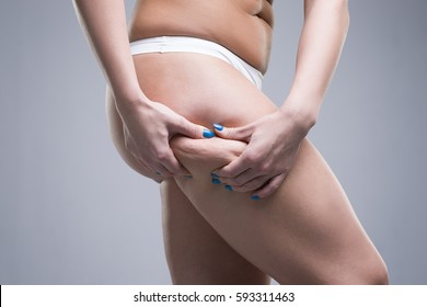 Woman holding fold of skin, cellulite on female body, gray background, studio shot