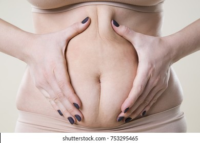 Woman holding fold of skin, cellulite on female body, beige background, studio shot