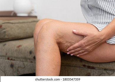 Woman at home with varicose veins. Healthcare problem, thrombophlebitis issue.