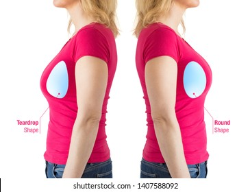 Woman with illustrations of round and teardrop shaped breast implants