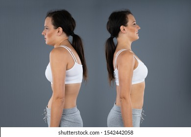 Woman With Kyphosis And Normal Curvature Against Gray Background