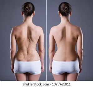 Woman with large scar on the back, before after concept, rear view on gray background