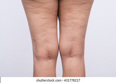 Woman leg with cellulite.