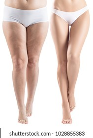 Woman legs before and after slimming.