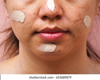 Woman make up cream on her face, acne on the face, melasma skin, skin problems, beauty concept