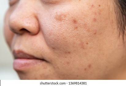 Woman middle age ethnic origin asia have problems with the facial skin is acne and blemishes.
