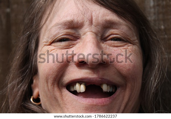 woman with missing front teeth