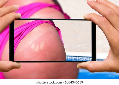 Woman with mobile phone photos a picture of burned skin on the buttocks