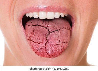 Woman Mouth And Broken Tongue With Cracks