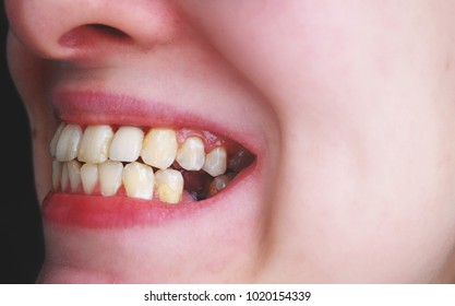 Woman open her toothless mouth. Caries and teeth decay consequences. Bad teeth hygiene. Denture with one missing tooth.