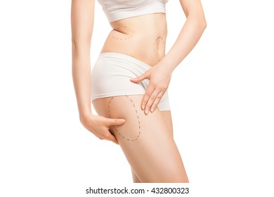 Woman with outlines for plastic surgery on body