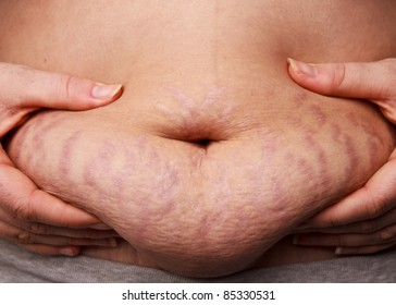 Woman pinching post-pregnancy tummy with stretch marks