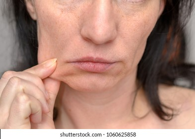 Woman pinching the skin of her cheek with her fingers pulling it to the side in a close up cropped view of her lower face