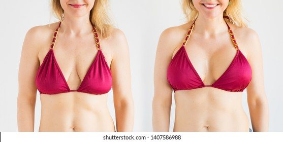 Woman posing in bikini top before and after breast augmentation plastic surgery with silicone breast implants.