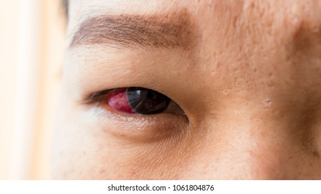 woman with problem on red eye infection