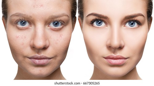 Woman with problem skin.