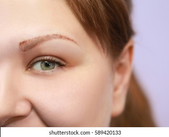 Woman in process of eyebrow tattoo removal