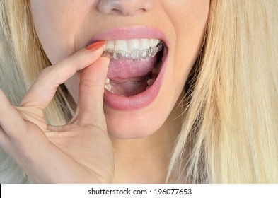 Woman put mouth guard on teeth