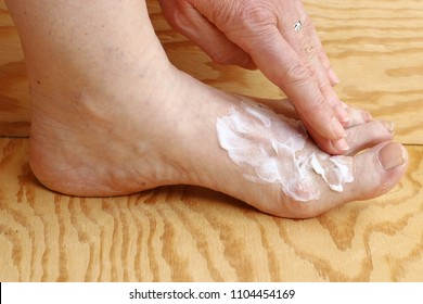 A woman puts some cream on her foot. Foot cream against dry skin and cornea on the foot. Cream against athlete's foot