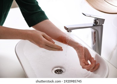 Woman putting burned hand under running cold water indoors, closeup