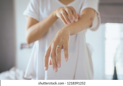 Woman with rash or papule and scratch on her arm from allergies,Health allergy skin care problem,Measles rashes