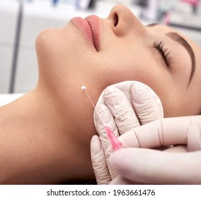 Woman receives a facelift, procedure mesothreads lifting skin. Cosmetic surgery, meso-threads lift, and contouring face